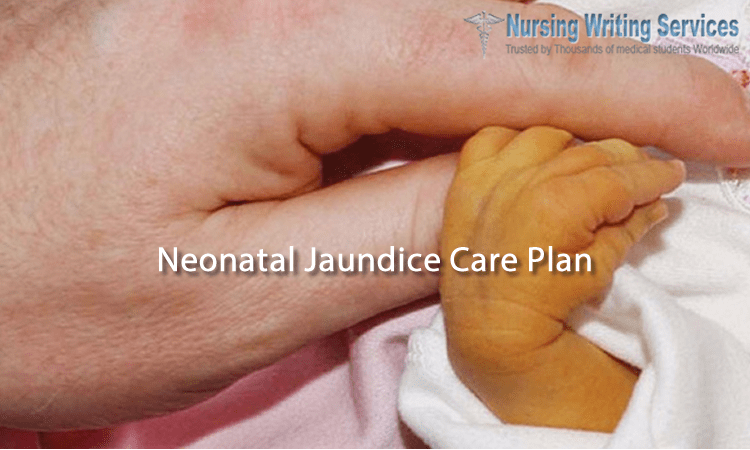 Neonatal Jaundice Care Plan Writing help