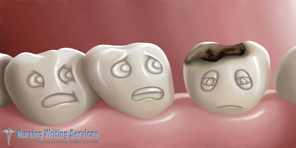 What Causes Tooth Decay