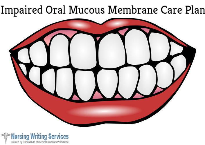 Impaired Oral Mucous Membrane Care Plan Writing Help Online